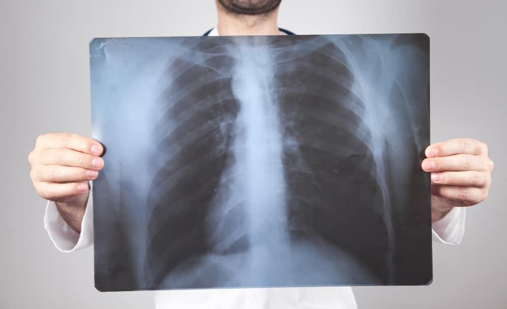 Zapalenie płuc – objawy, przyczyny i leczenie